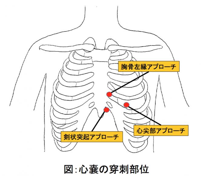 図:心嚢の穿刺部位